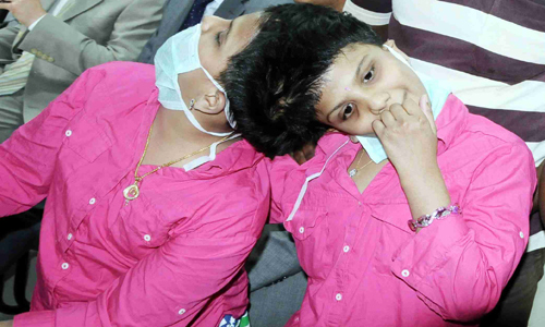 Veena Vani Conjoined Twins change home