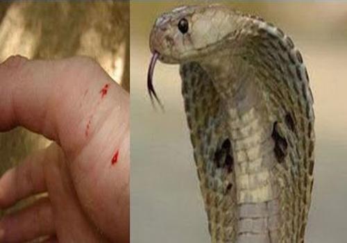 Treatment of Snake Bite