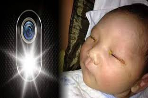 Chinese baby permanently blinded  camera flash.
