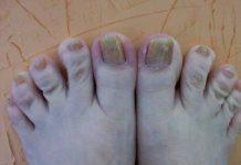Clean Yellow Toe Nails Prcedure