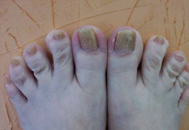 Clean Yellow Toe Nails Prcedure