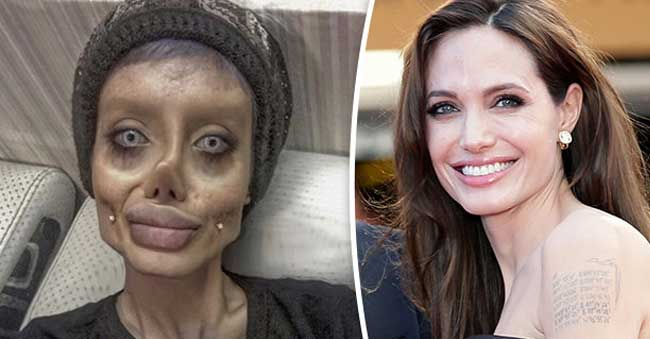 Teenager undergoes 50 surgeries to look like 'Angelina Jolie