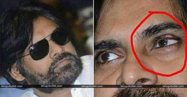 Janasenani Underwent Second Eye Surgery