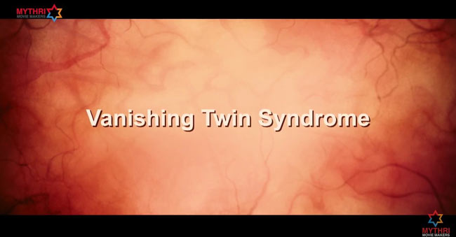 Vanishing-twin-syndrome