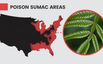 5 Natural Ways to Prevent & Treat Poison Sumac