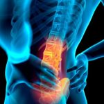 Physical therapy better for low back pain: Study