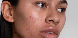 Stress, poor diet, linked with acne